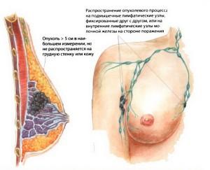 Stadii-raka-molochnoj-zhelezy-300x243