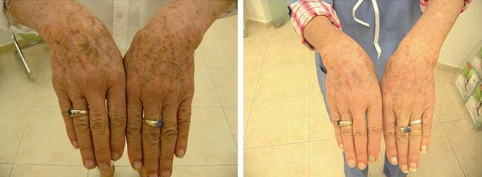 hands-pigmentation-removal